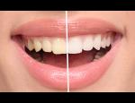 Ordinační bělení zubů, prevence proti zabarvení chrupu – pískování neboli Airflow