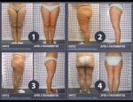 Lékařská kryolipolýza, metoda pro cílené odbourávání tuků a celulitidy