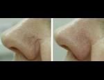 Laserová korektivní dermatologie a lékařské laserové depilace
