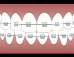 Fixní rovnátka kovová a keramická