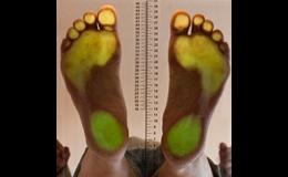 Plantoskop zjistí rozložení zátěže a osové postavení nohy