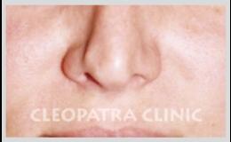 Plastické operace nosu