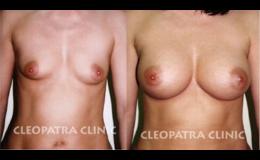 Zvětšení ženských prsou pomocí kvalitních implantátů