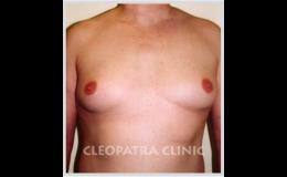 Plastické operace zvětšených mužských prsou