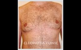 Plastická operace prsou u mužů - po zákroku