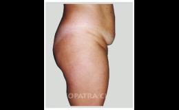 Plastická operace břicha - odstranění tuků a kůže