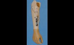 Protézy horních končetin podle potřeb pacienta