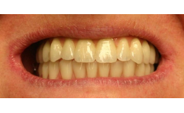 Celková zubní náhrada