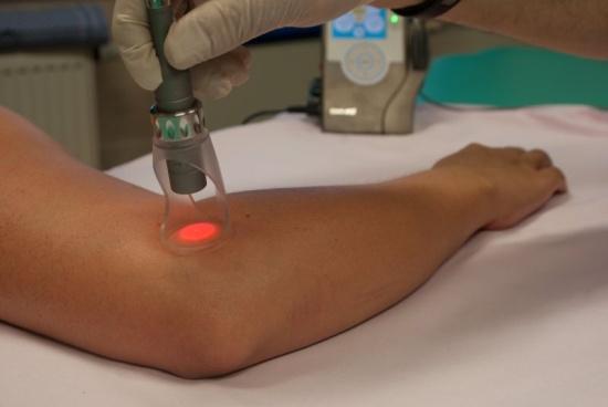 Co je fototerapie a jak léčí polarizované světlo  74209926236