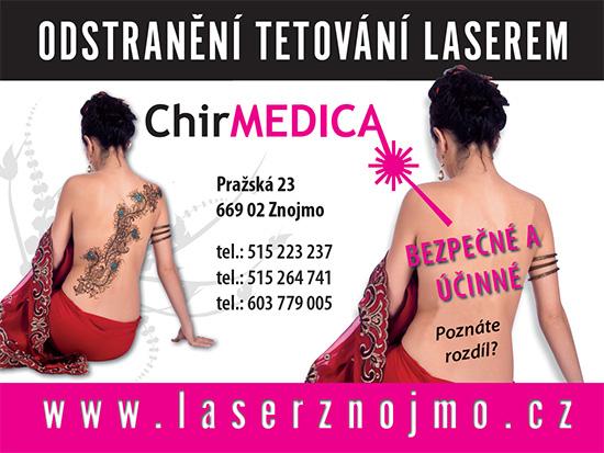 Laserové odstranění tetování, pigmentace i popraskaných žilek