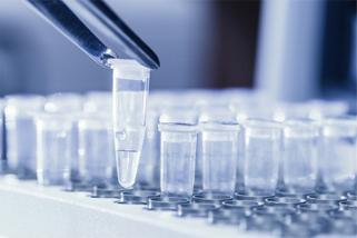 Biobary společnosti Biogen – nonstop zásoby pro vaši laboratoř
