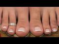 Trápí vás zarostlé nehty? Nehtová špona je řešení.