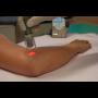 Co je fototerapie a jak léčí polarizované světlo?