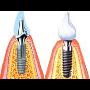 Rekonstrukce chrupu ani stomatochirurgie nemus� bolet