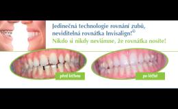 Neviditelná rovnátka Invisalign, Dental office H33, Praha