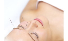 akupunktura Praha