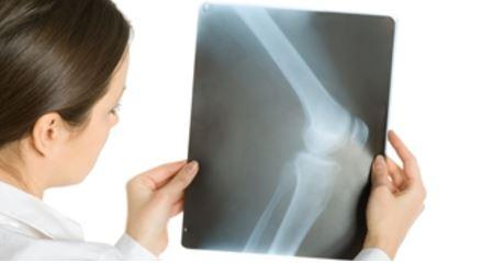 Zkoušky rentgenových zařízení odborně způsobilou osobou